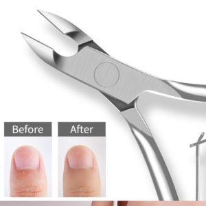Nagelbandsklippare hjälper dig att ta bort övervuxna och flikiga nagelband.